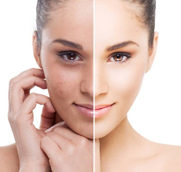 vegan peeling how and why prepare one serena makeup