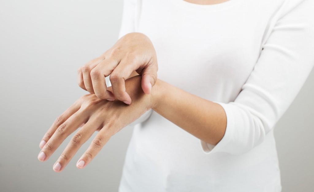 dermatite, eczema, orticaria